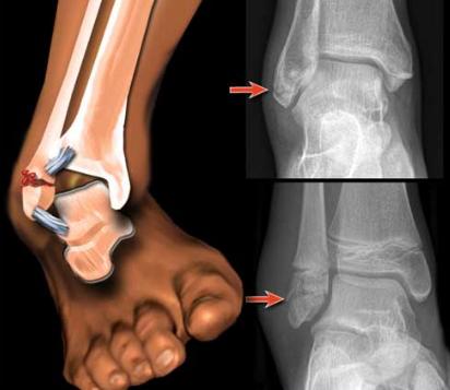 После перелома лодыжки отекает нога: что делать и как его убрать