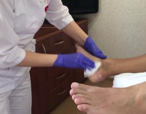 Прокол шишки на ноге