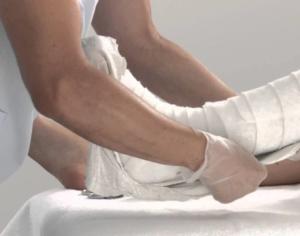 Накладывание гипса на поврежденную ногу