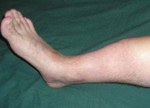 Псевдоартроз ноги