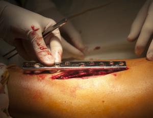 Пластина для сращивания перелома голени
