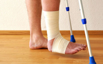 Когда можно наступать на ногу при переломе лодыжки без смещения