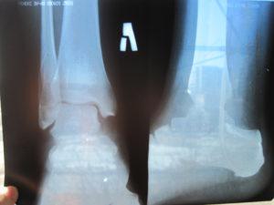 Перелом лодыжки без смещения на рентгеновском снимке