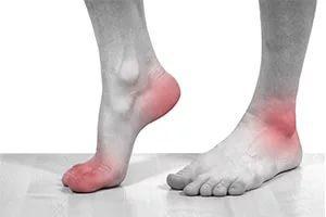 Болит ахиллово сухожилие при ходьбе