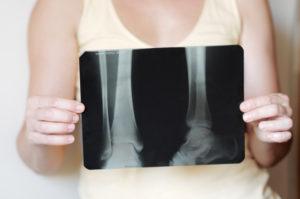 Вывих ноги на рентгеновском снимке