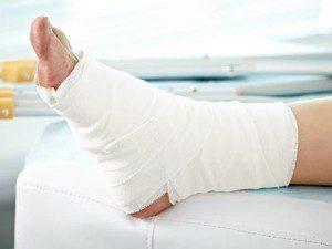 Картофельные компрессы на ногу для устранения отеков