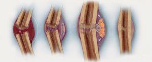 Сколько времени срастаются переломы лодыжки со смещением