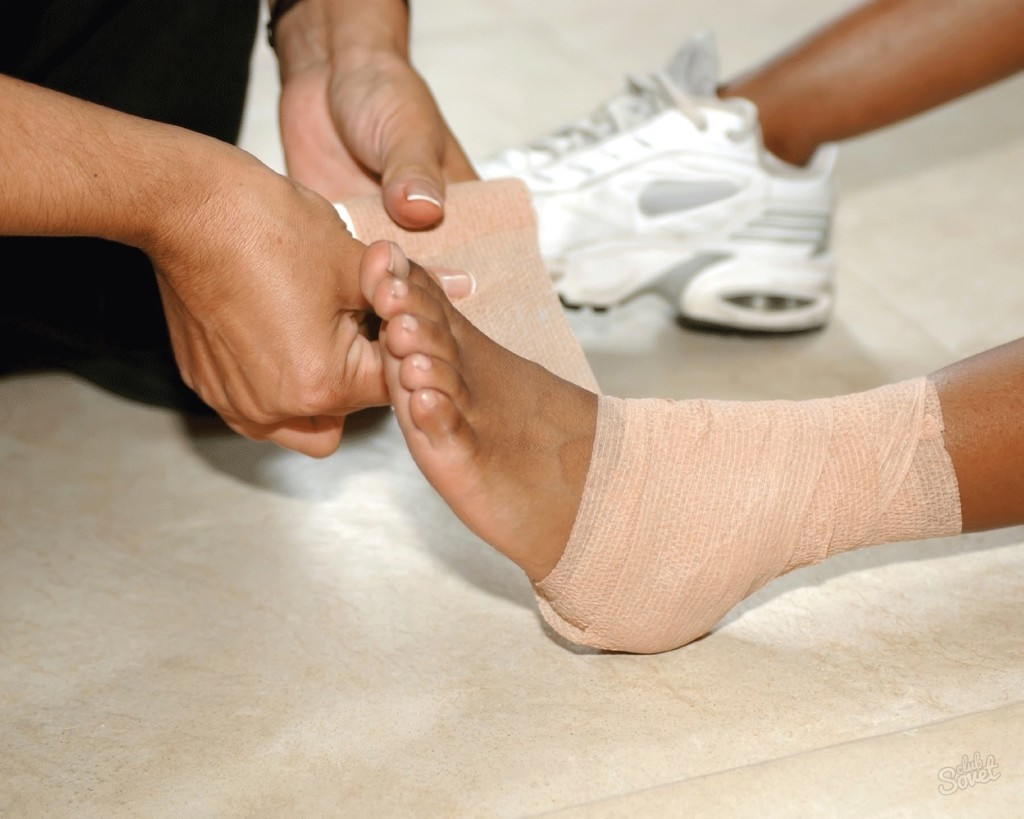 Растяжение связок стопы: лечение в домашних условиях