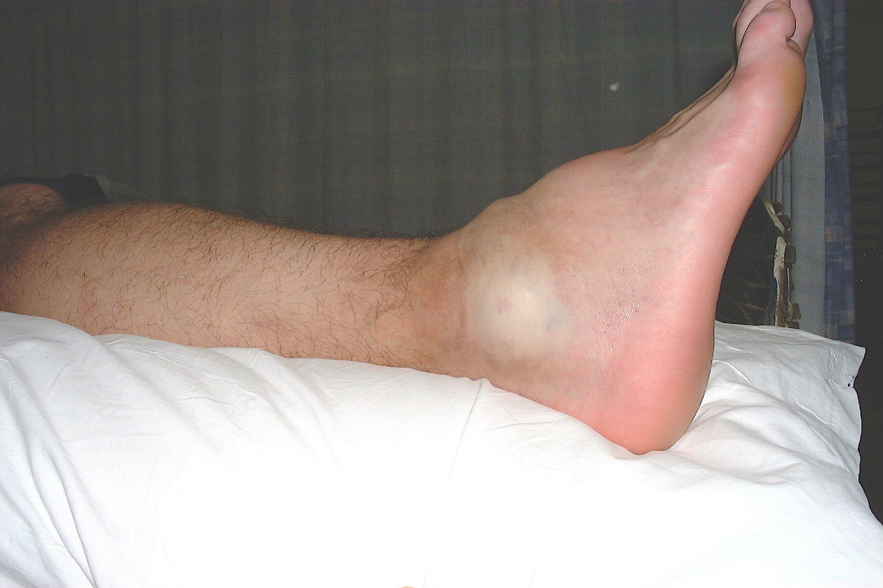 Причины отёков ног у мужчин: заболевания и симптомы