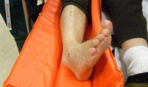 Изображение - Перелом наружной лодыжки сустава мкб 10 noga-so-slomannoy-lodyizhkoy-300x177