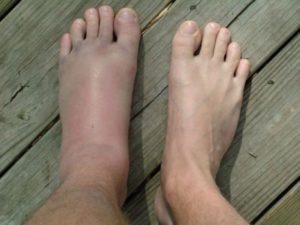 Отекание ноги от укуса насекомых