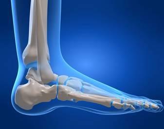 Апикальный перелом наружной и внутренней лодыжки со смещением и без