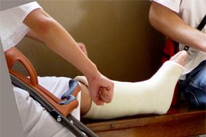 Лечение после перелома лодыжки после снятия гипса: отёки и ...