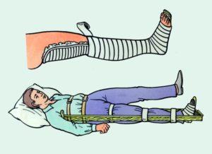 Наложение шины на ногу