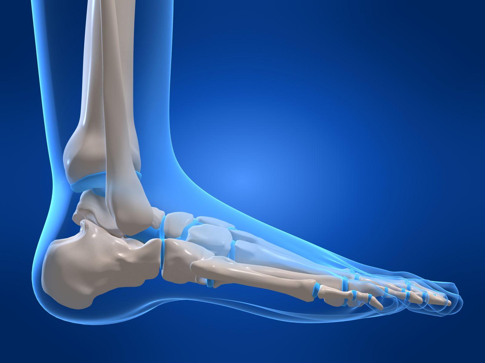 Бурсит ахиллова сухожилия - причины и признаки бурсита ахиллова сухожилия