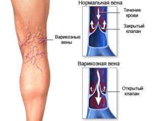 Варикоз - первый симптом отечности ног