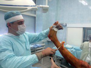 Операция при переломе лодыжки