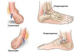Как накладывать эластичный бинт на голеностопный сустав лечение артроза коленного сустава г.нижний тагил