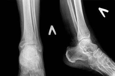 Артроз голеностопного сустава код по мкб 10 упражнения при артрозе суставов стопы