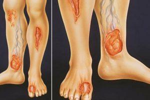 Трофические язвы на голени при сахарном диабете: фото начальной стадии, коды по МКБ-10