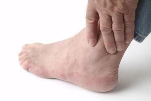Воспаление связок голеностопного сустава лечение народными средствами. Воспаление голеностопного сустава лечение в домашних условиях