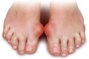 Деформирование ноги при артрозе голеностопного сустава