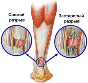 Отекают ноги в щиколотках - причина и чем лечить
