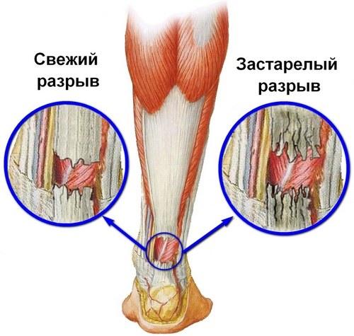 Отекают ноги внизу возле косточки что может стать причиной