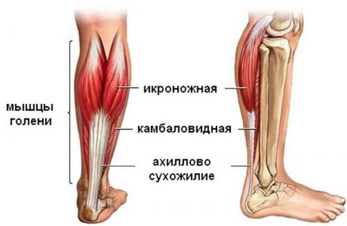 Разрыв икроножной мышцы: симптомы и лечение в домашних условиях