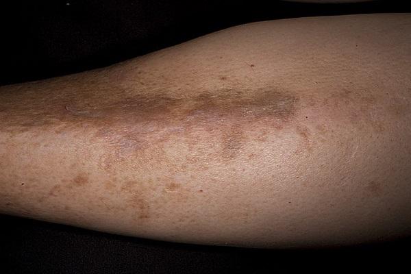 Темные пятна на ногах и между ног: причины появления и как убрать