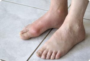 Воспаление в области голеностопа