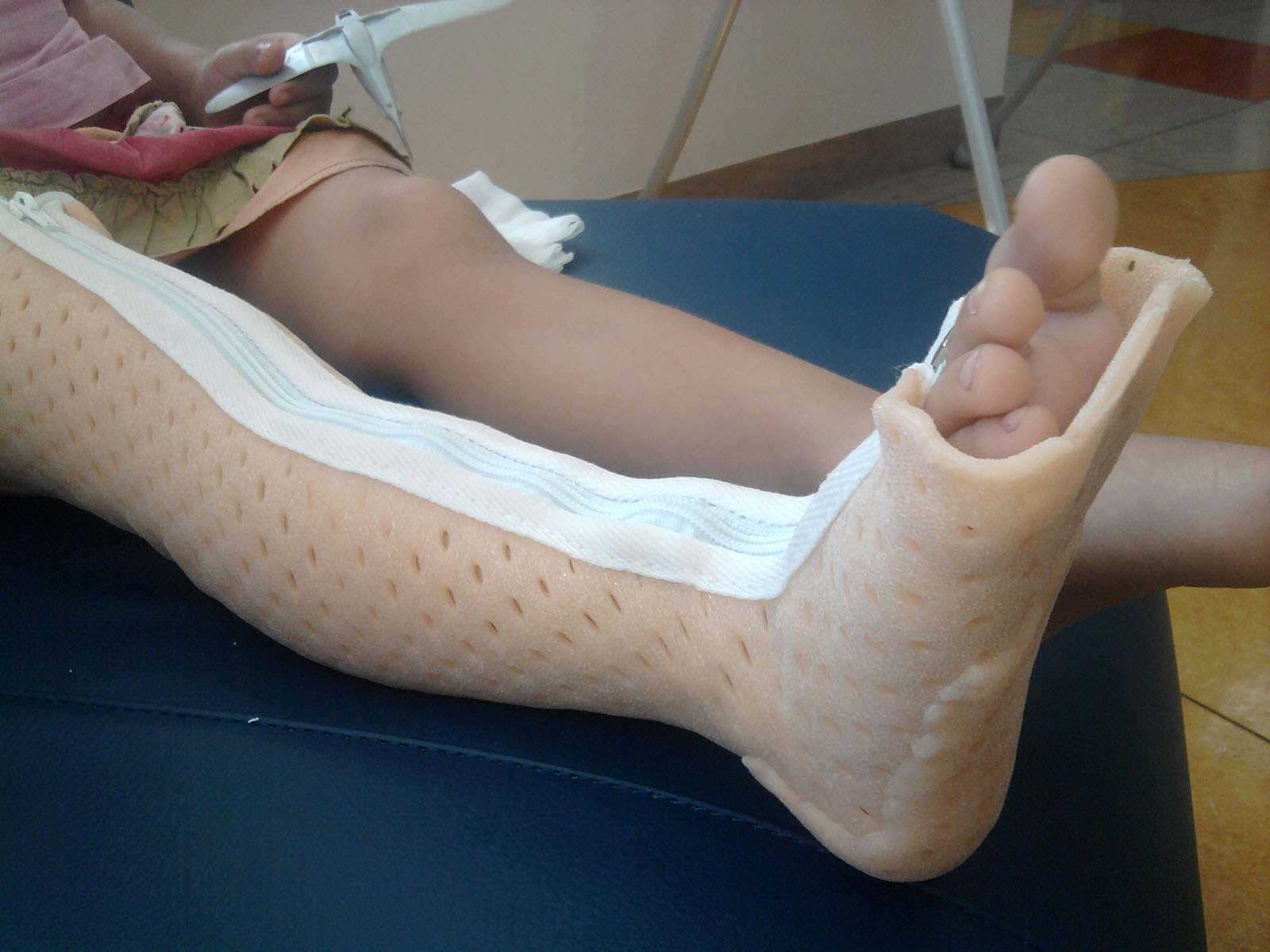 Полимерный гипс голеностопный сустав что лучше для суставов