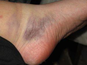Синюшность ноги в области голеностопа