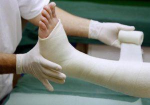 Как определить трещину в голеностопе - 9 способов лечения