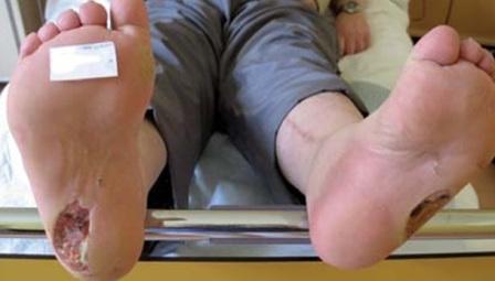 открытые раны на пятках как лечить работы