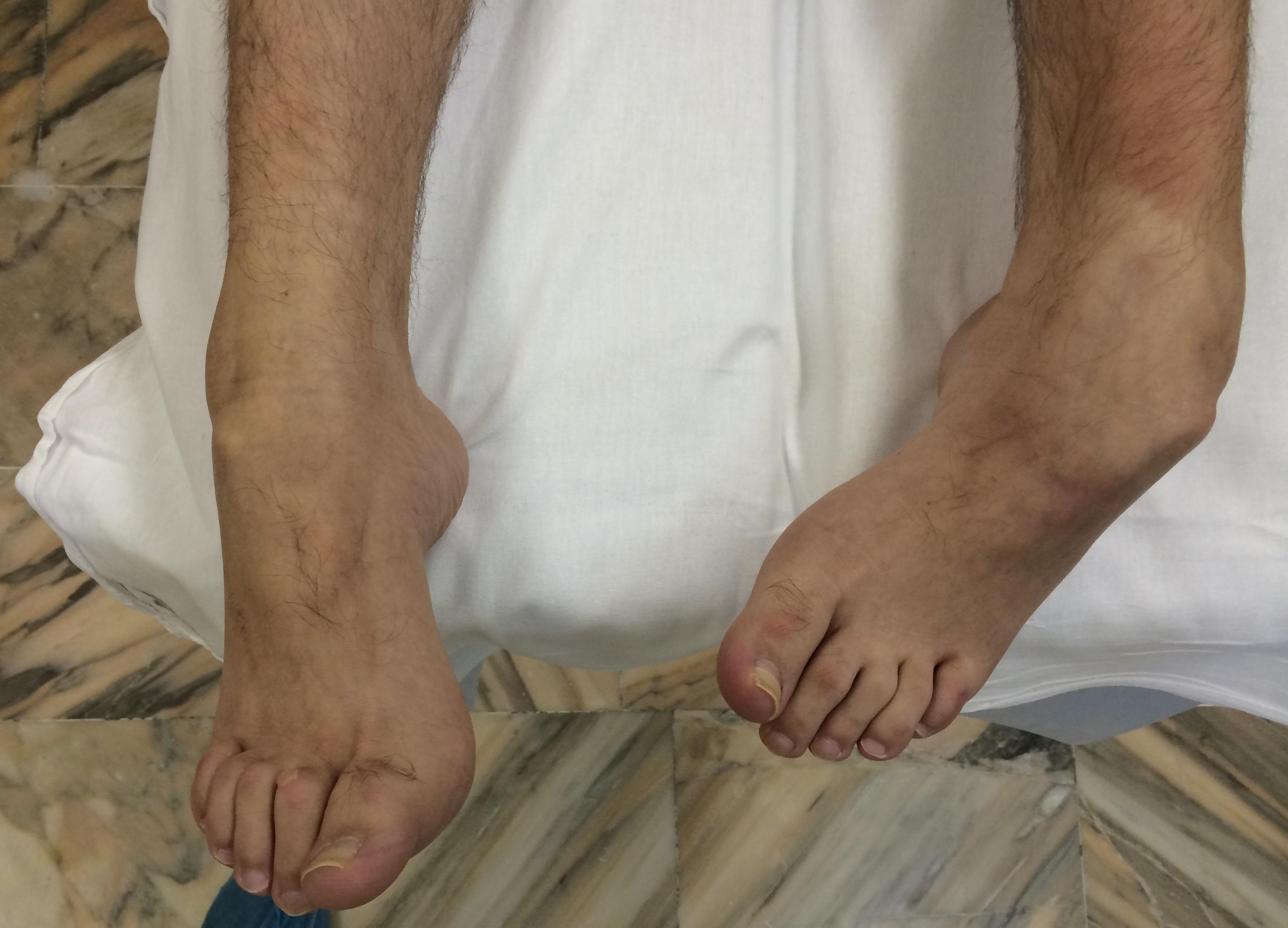 Рентген при артрите : признаки разных стадий