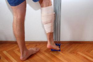 Растяжение связок бедра и икроножной мышцы: симптомы и лечение