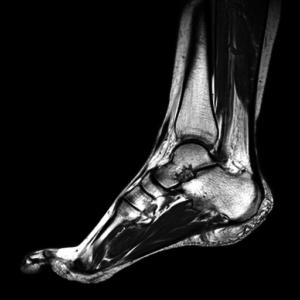 Рентген конечности для выявления причин боли
