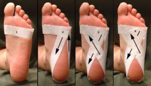 Тейпы на голеностоп - тейпирование голеностопного сустава