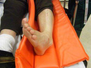 Отекла нога в голеностопе