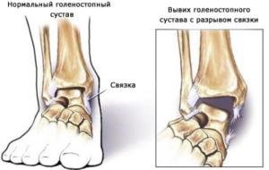 Как накладывать эластичный бинт на голеностопный сустав (фиксация)