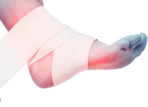 Частичный разрыв связок голеностопа как лечить связки если они порваны