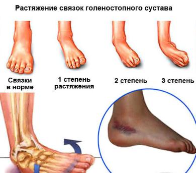 Как сделать компресс на ногу фото 369