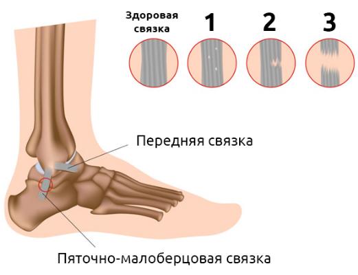 Растяжение связок голеностопного сустава: лечение в домашних ...