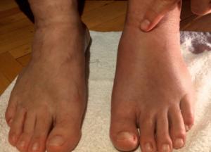Отек ноги в области растяжения