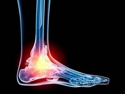 Признаки трещины в голеностопе: симптомы, как выглядит рентген, фото