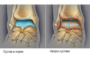 Артроз сустава (справа)
