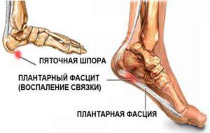Пяточная шпора на ноге