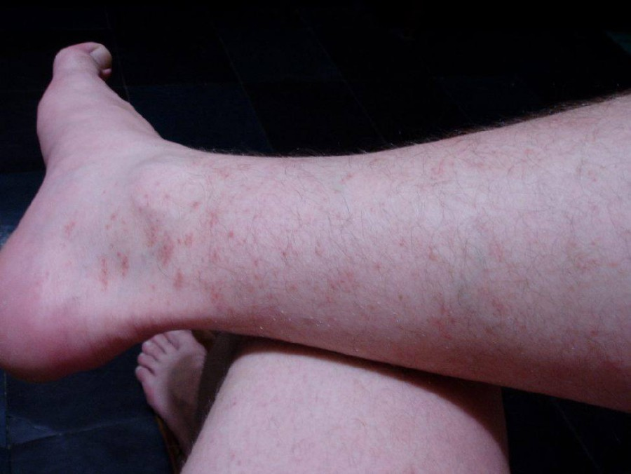 Сыпь на ногах в виде красных точек у взрослого с зудом и без лечение причины фото