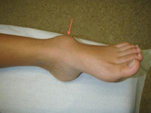 Гигрома голеностопного сустава: симптомы, диагностика и лечение